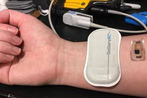 A prototype of a wearable medical device under development by Dr. Marvin Slepian
